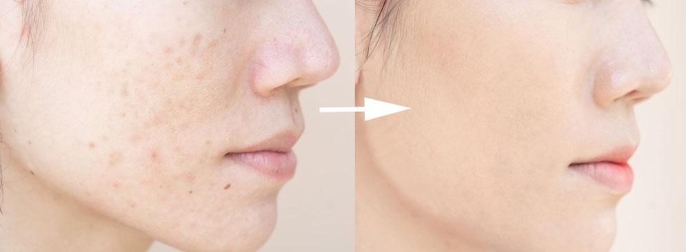 Alpstein Kosmetik Microneedeling